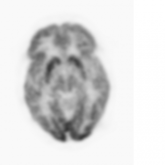V-XQ-HQ-030-FP61 13C transverse slice McGinnity