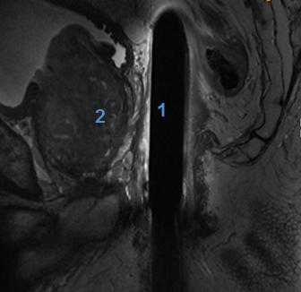 1H Endorectal Coil Image 1