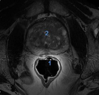 1H Endorectal Coil Image 2